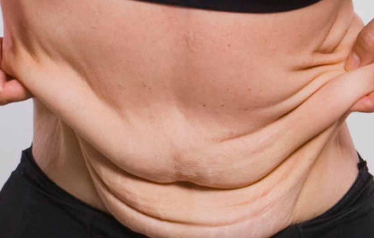 Cirurgia reparadora pós bariátrica – Por que você tem direito